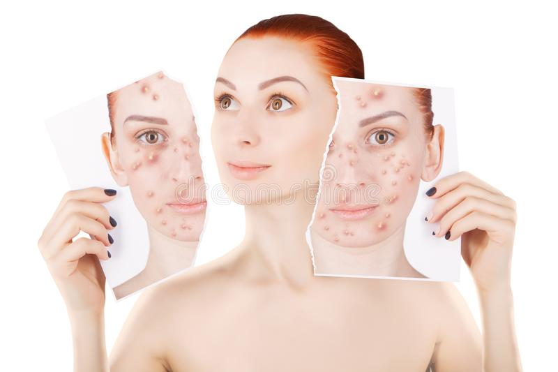 Acne problems, red haired woman portrait over white stock images