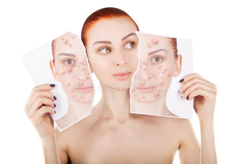 Acne problems, red haired woman portrait over white royalty free stock photo