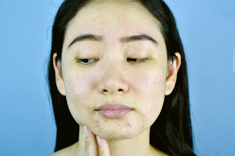 Acne scar skin facial problem, Asian woman annoy and bored about hormonal pimples. Acne scar skin facial problem, Asian woman annoy and bored about hormonal stock photography