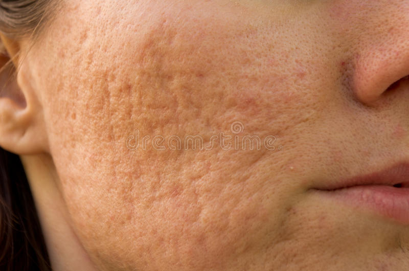Acne scars. Girl with problematic skin and scars from acne stock photos