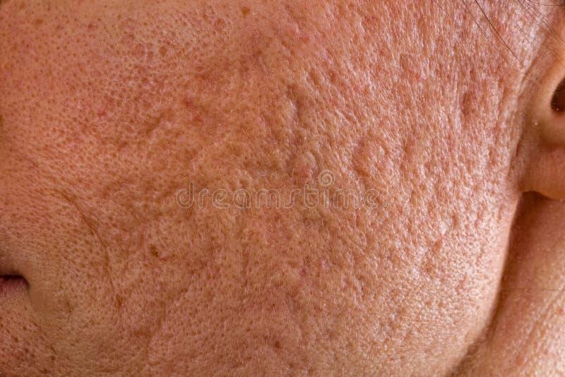 A acne scars no mordente fotos de stock royalty free