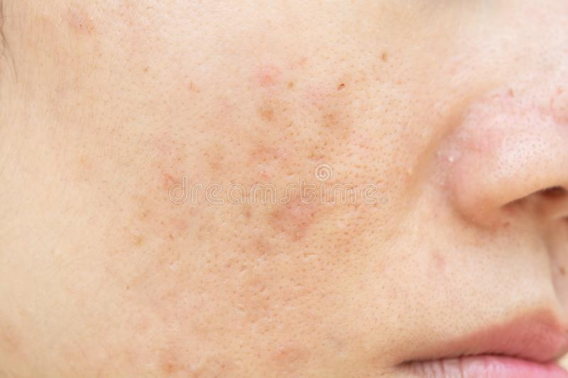 Acne scars and pores. Dark spots. Wrinkles. And skin problems stock images