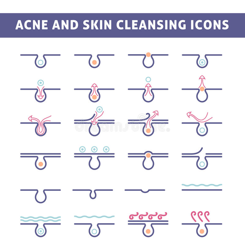 Acne skin care. Icon acne, schematic view of a skin care, problem skin with acne in section royalty free illustration
