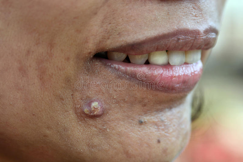 Acne on skin face. Close up for acne on skin face stock photos