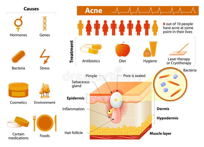 Acne. skin problems. medicine in medical infographics. Acne. health problems. medicine in medical infographics. elements and icons for design. Skin layers royalty free illustration