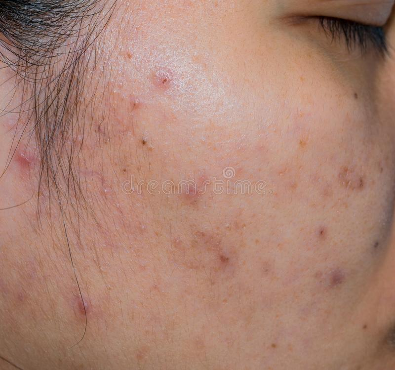 Acne and acne spot on oily face skin of Asian woman. Concept before acne treatment and face laser treatment for get rid of dark. Spot post-acne. Closed royalty free stock photo