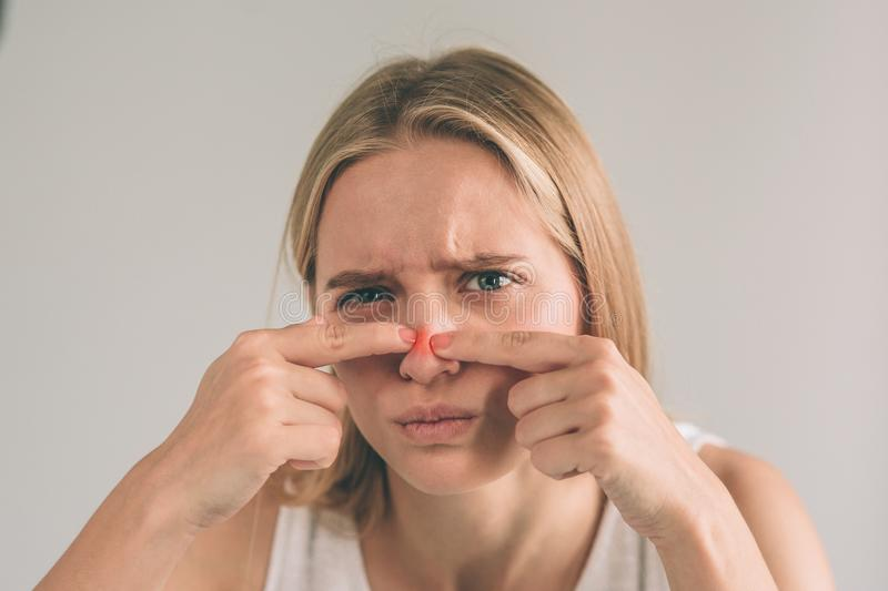 Acne treatment. Acne woman. Young woman squeezing her pimple, removing pimple from her face. Woman skin care concept stock image