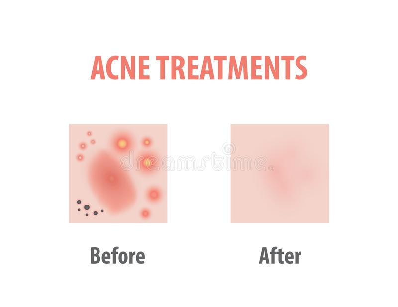 Acne Treatments Diagram Illustration Vector On White Background