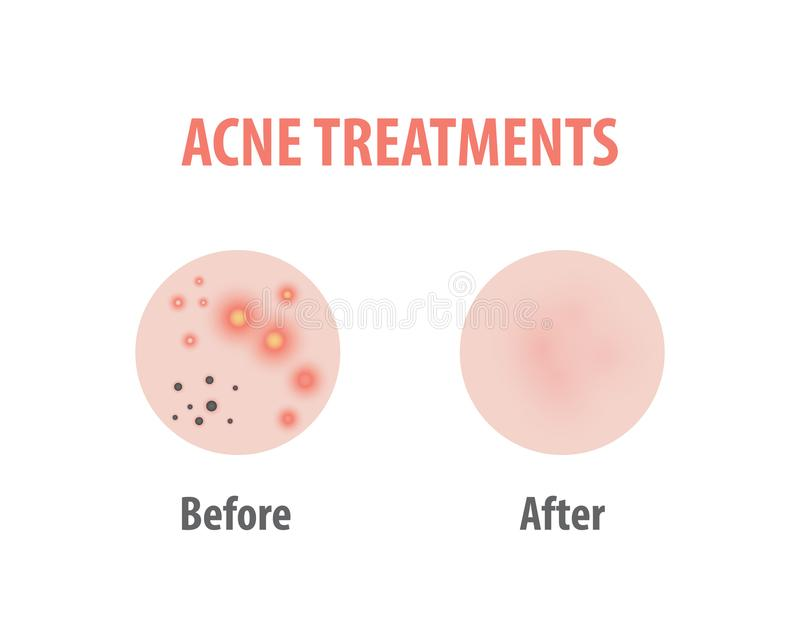 Acne treatments diagram illustration vector on white background, Beauty concept. vector illustration