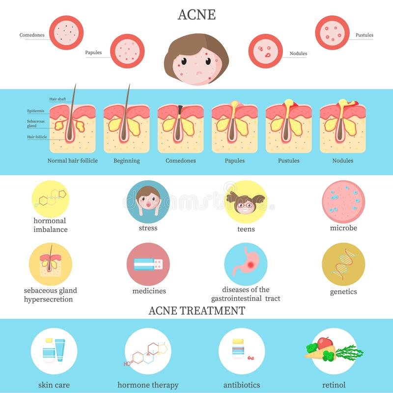 Acne types, causes and treatment infographics, vector flat illustration stock illustration