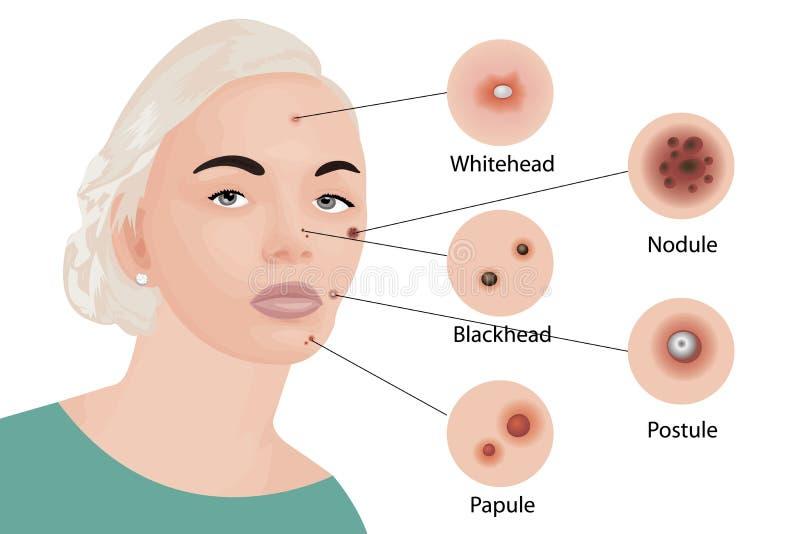 Acne types Cosmetology stock illustration