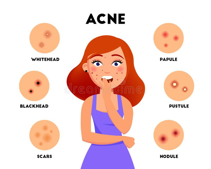 Acne types infographic elements vector flat illustration. Girl with acne on face and different skin problems icon set vector illustration