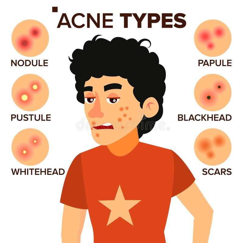 Acne Types Vector. Boy With Acne. Pimples, Wrinkles, Dry Skin, Blackheads. Isolated Flat Cartoon Character Illustration royalty free illustration