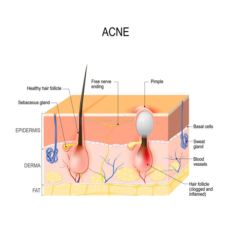 Acne vulgaris. pimple. Acne vulgaris or pimple. healthy hair follicle and clogged pore. The sebum and dead skin cells in the clogged pore promotes the growth of vector illustration