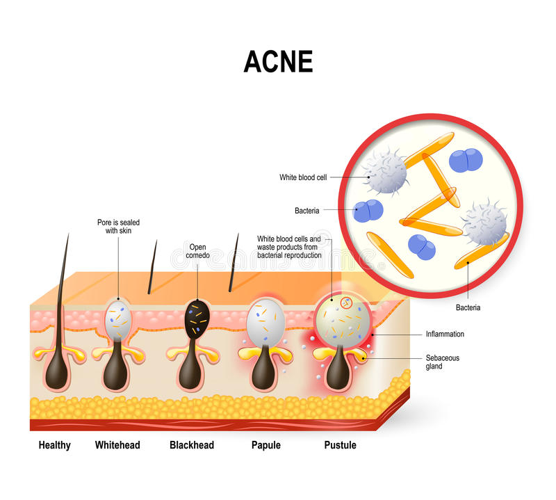 Acne vulgaris or pimple. The sebum and dead skin cells in the clogged pore promotes the growth of a certain bacteria. This leads to the redness and royalty free illustration