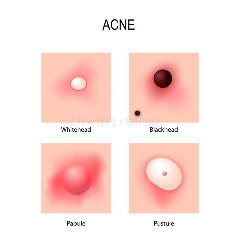 Acne vulgaris. stages of development. Types of pimples. vector illustration