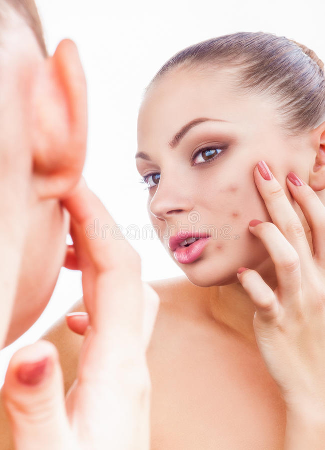 Acne in women stock images