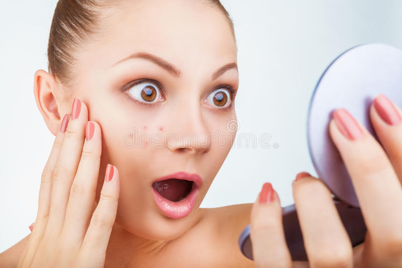 Acne in women royalty free stock images