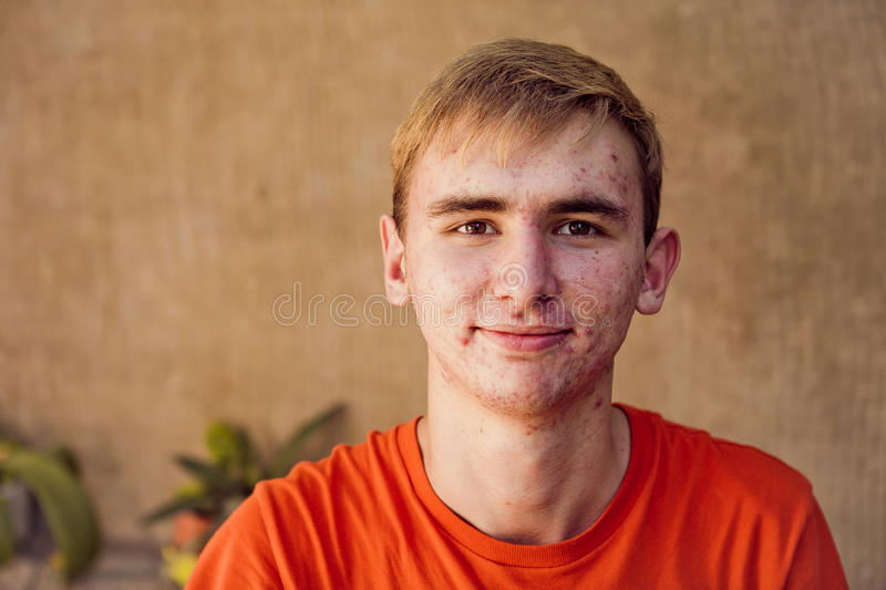 Acne. The young man has acne. Problems with the skin royalty free stock photography
