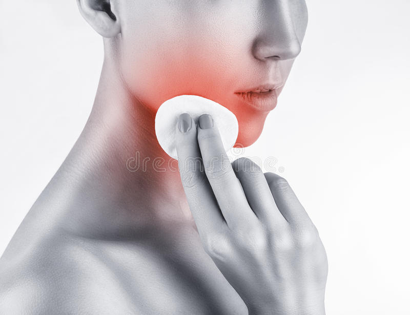 Acne. Young woman struggling with acne on the face with a cotton pad isolated on a white background royalty free stock photography