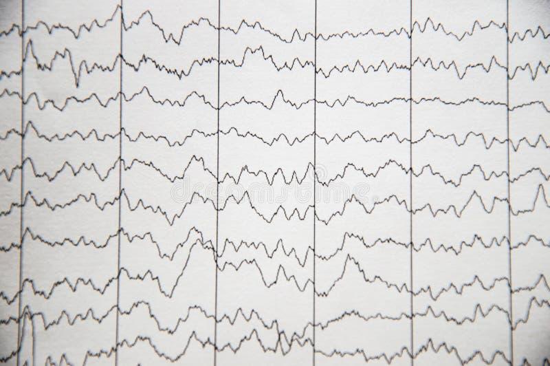 Activité électrique du cerveau, EEG des patients pédiatriques présentant l'immaturité du cortex cérébral images libres de droits