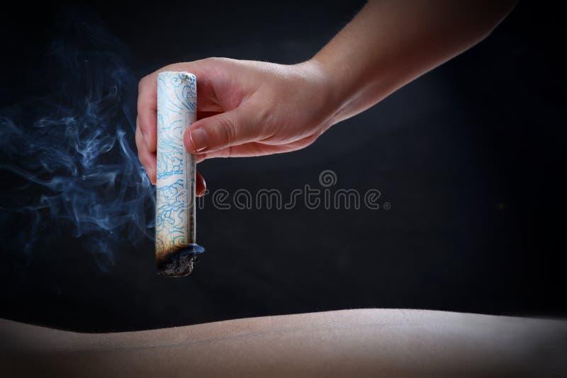 Acuponcture et moxibustion--une méthode de médecine de chinois traditionnel photographie stock