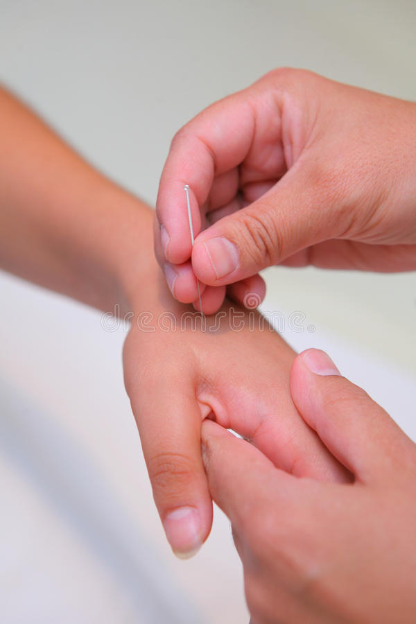 Acuponcture - insertion d'un pointeau photo libre de droits