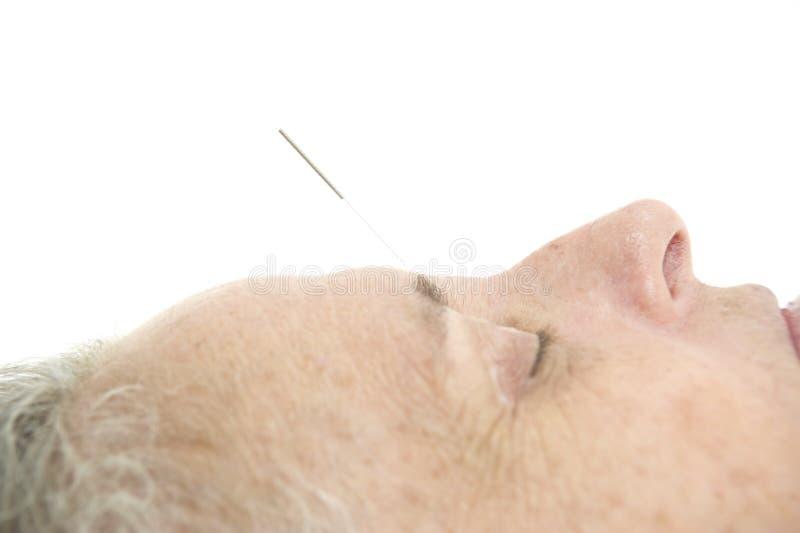 Acupunctura imagem de stock royalty free