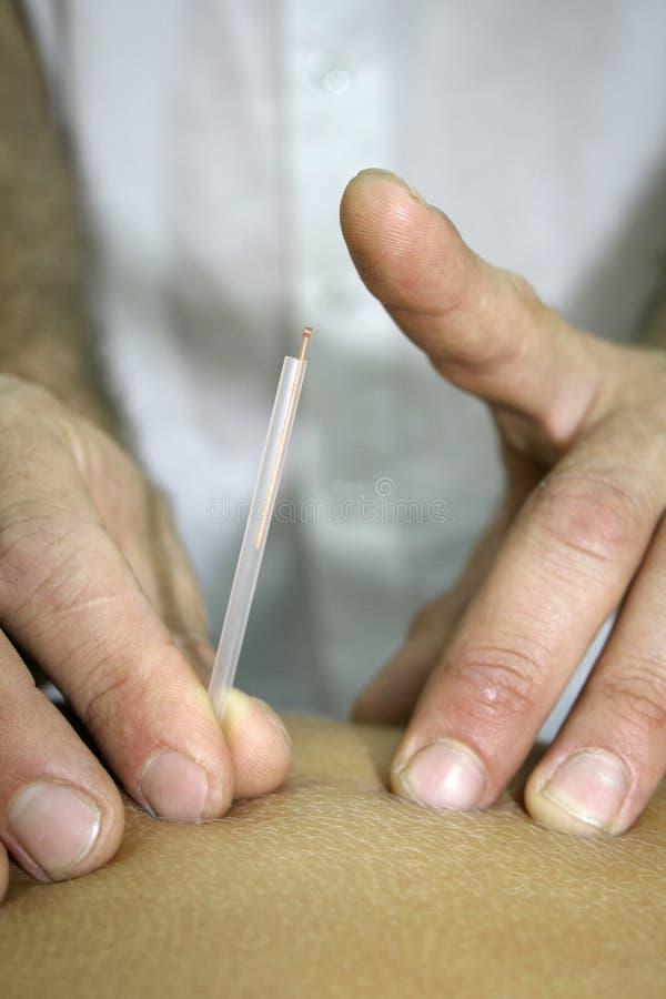 Acupunctura fotografia de stock