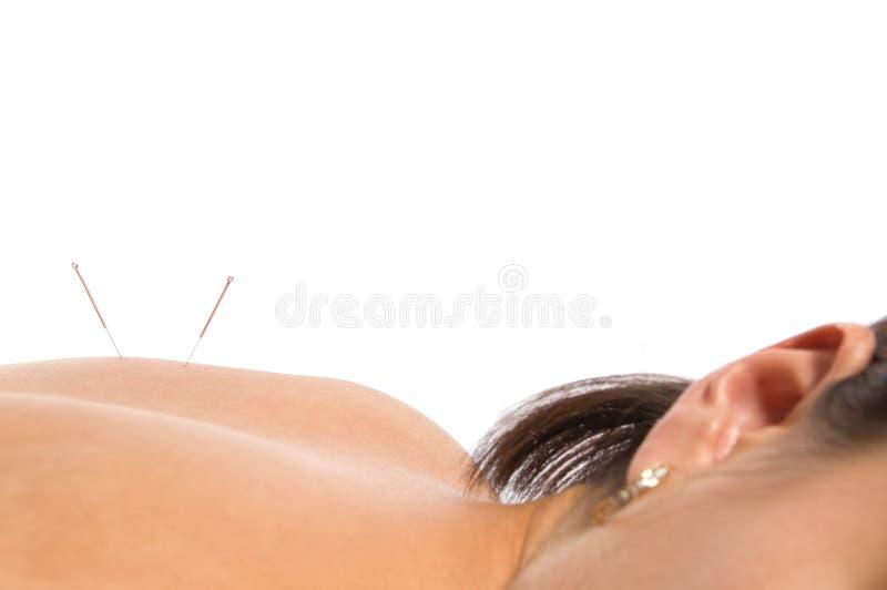 Acupunctura fotografia de stock royalty free