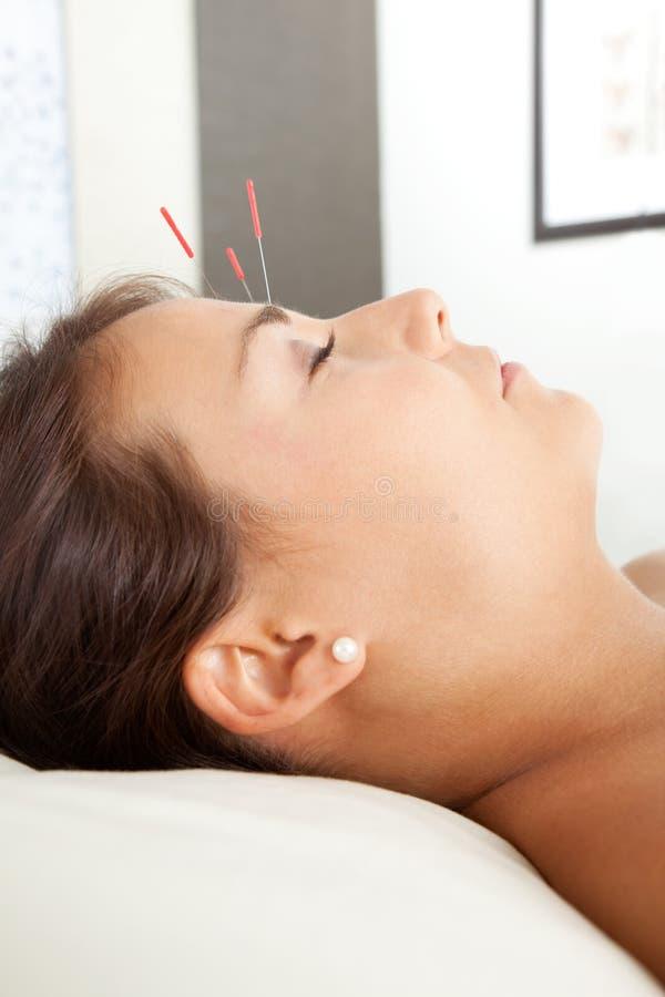 Acupunctura facial foto de stock royalty free