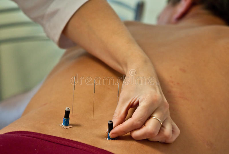 Download Acupuncture stock photo. Image of complementary, relaxation - 11021058
