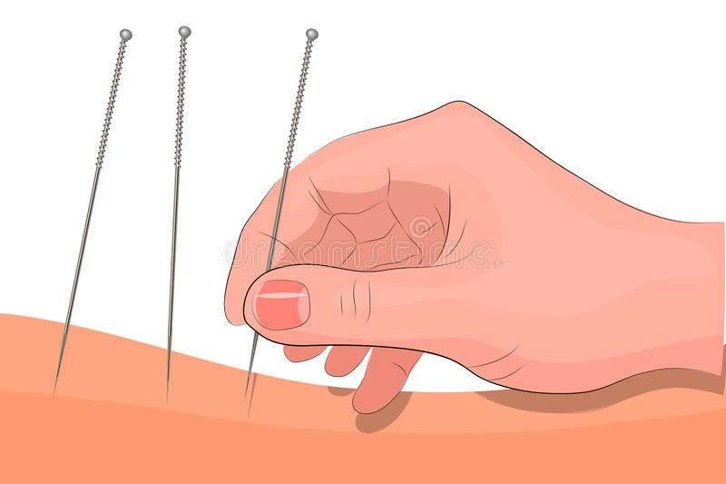 Acupuncture. hand and needle for acupuncture vector illustration