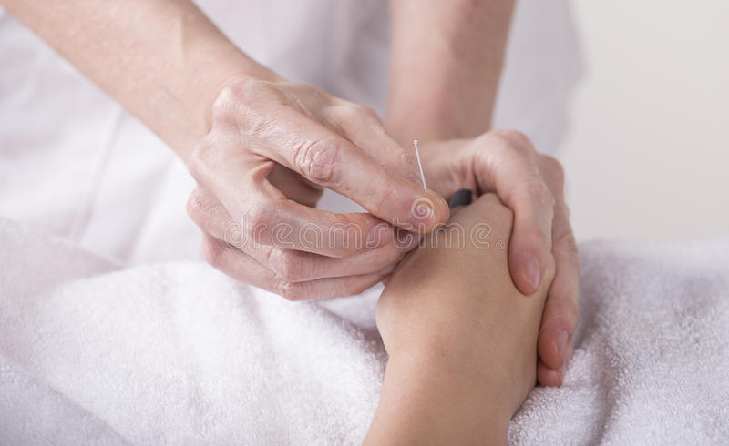 Acupuncture hand stock image