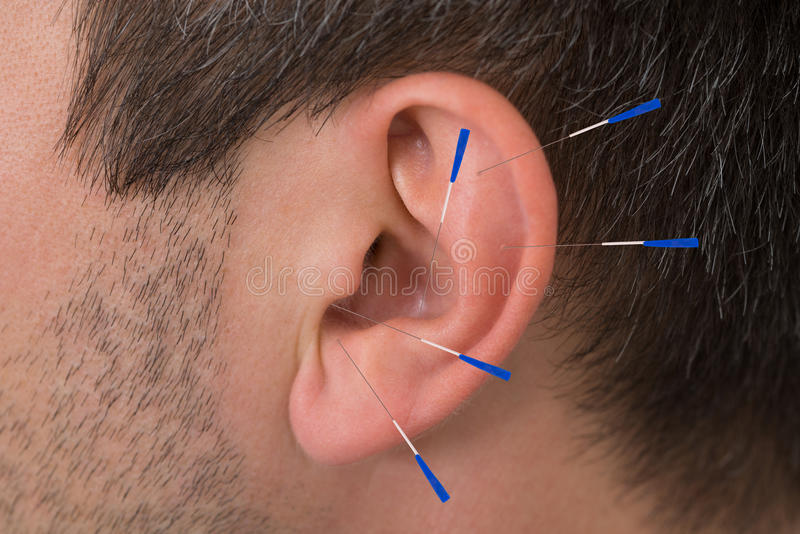 Acupuncture needles on ear stock photography