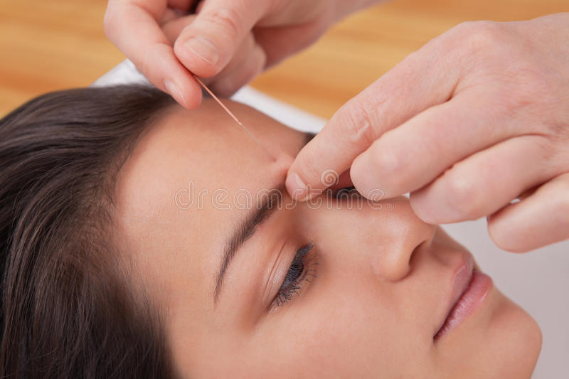 Acupuncture needles on head royalty free stock photography