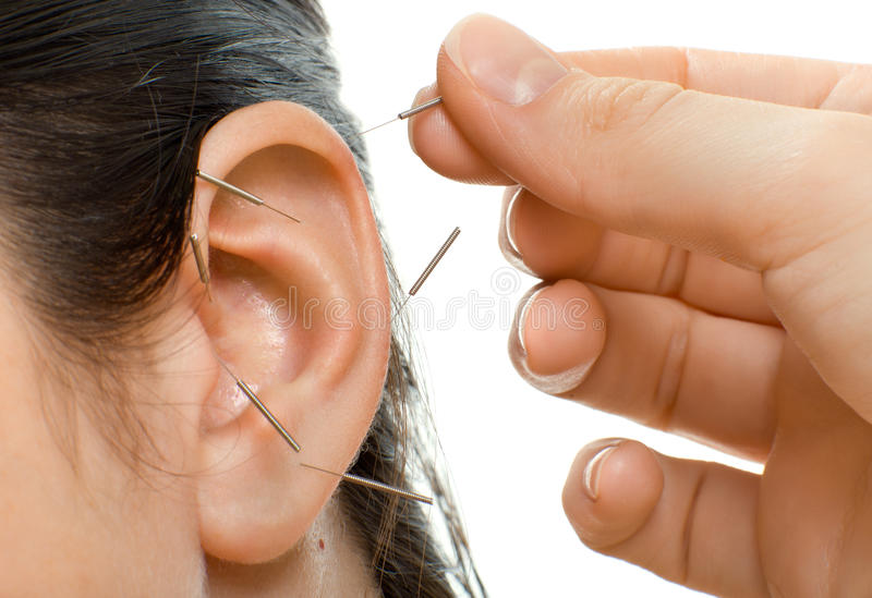Acupuncture stock image