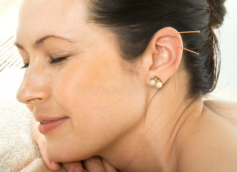 Acupuncture. Therapy on auricle, horizontal very close up photo stock images