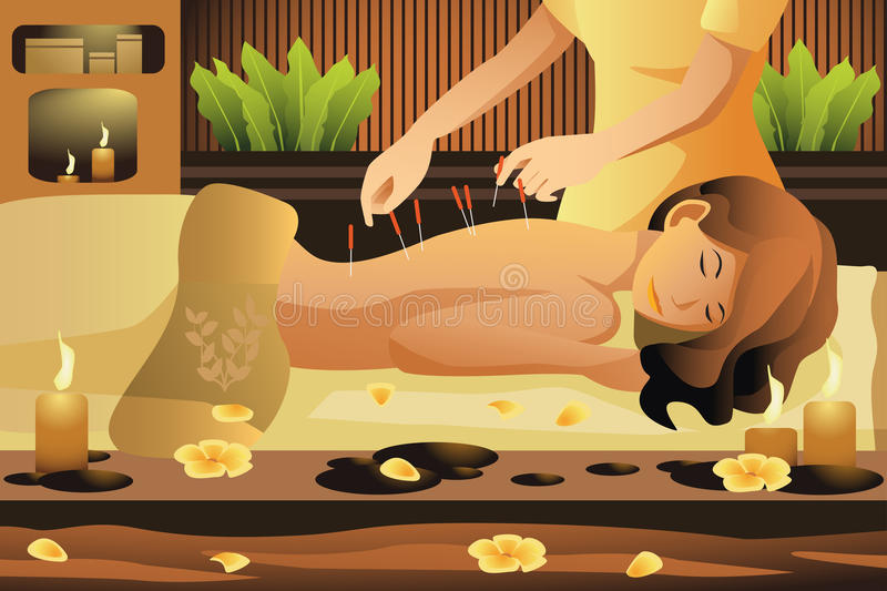Acupuncture therapy royalty free illustration