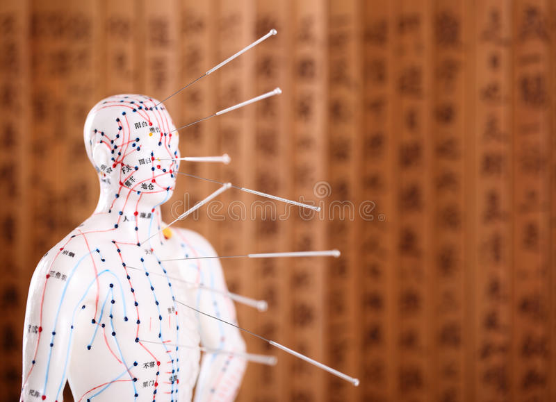 Acupuncture Treatment. stock images