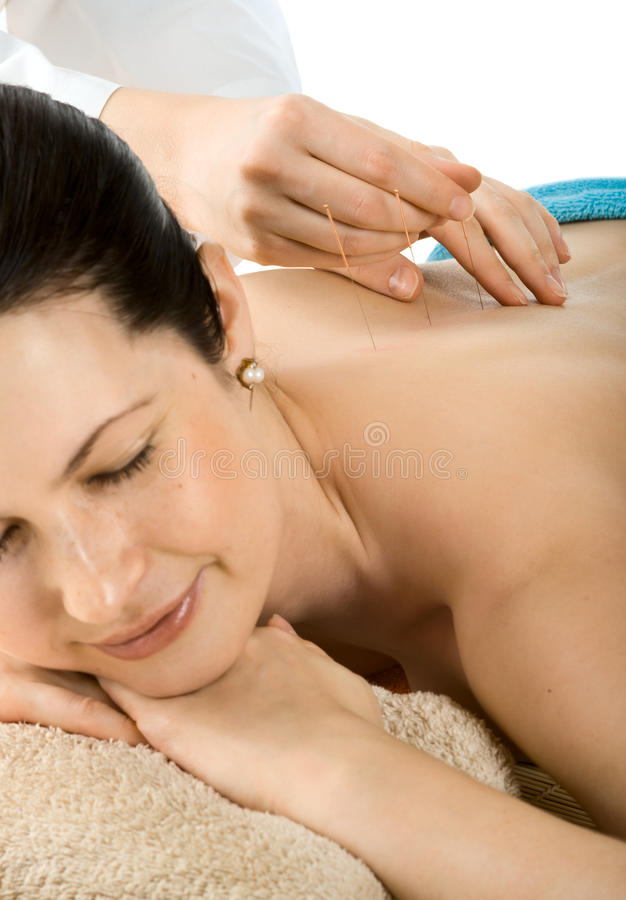 Download Acupuncture Stock Photo - Image: 39698236
