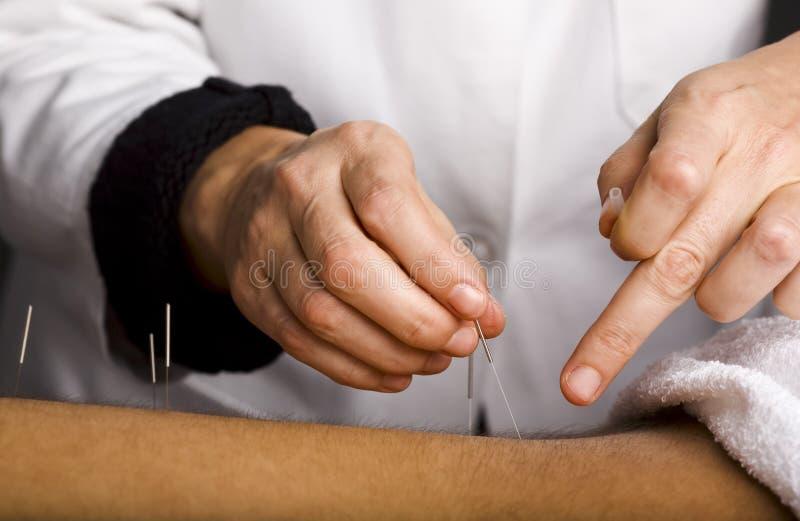 Acupuncturist hands stock image