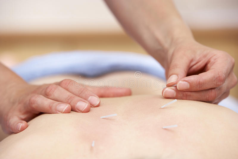 Acupuncturist treating female client. Close up royalty free stock photography