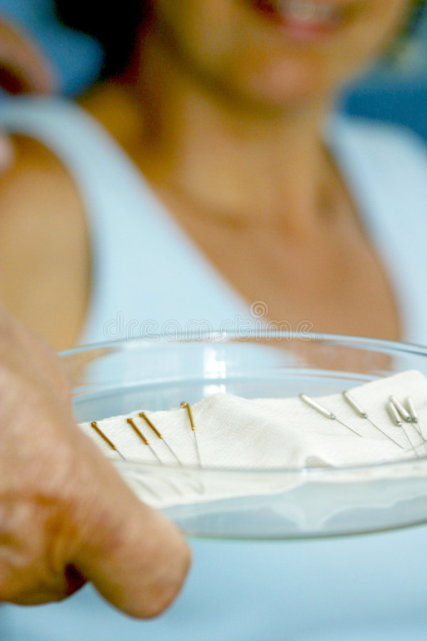 Acupunctuur. stock afbeeldingen