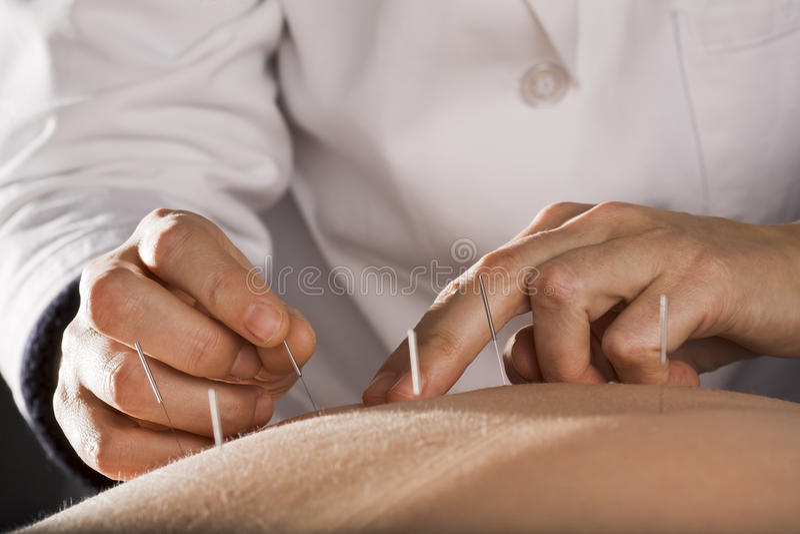 Acupunctuur royalty-vrije stock afbeelding