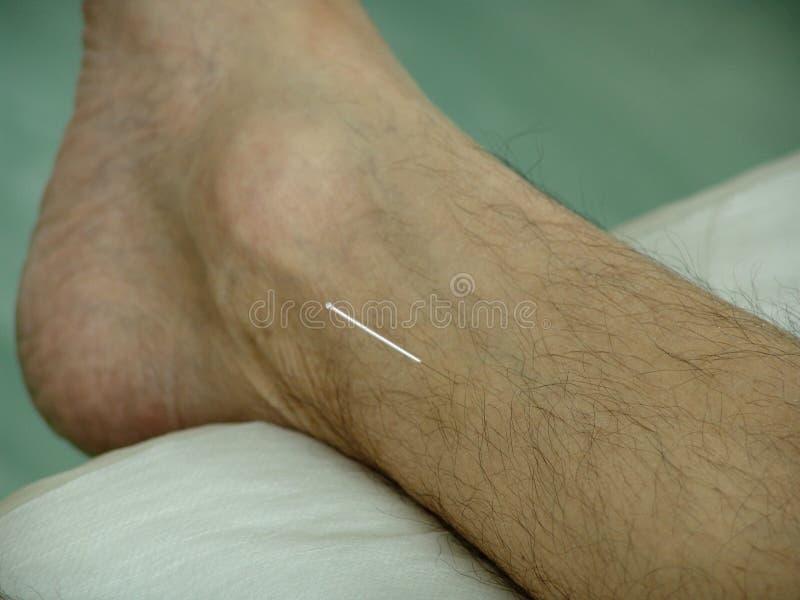 Acupunctuur royalty-vrije stock fotografie