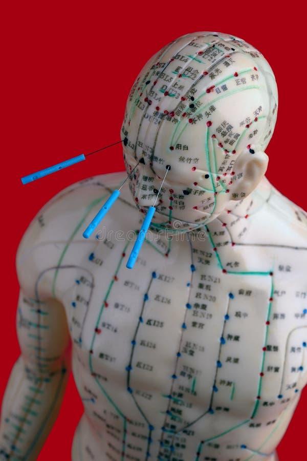 Acupunctuurmodel met naalden royalty-vrije stock afbeeldingen