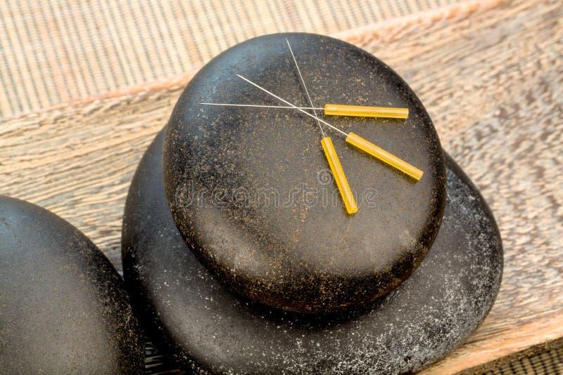 Acupunctuurnaalden royalty-vrije stock foto