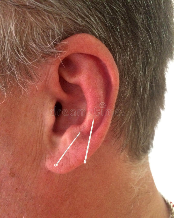 Acupuntura nas orelhas de um homem foto de stock