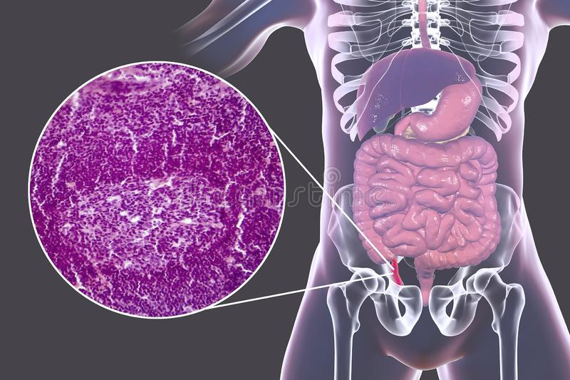 Acute appendicitis, illustration and light micrograph. Acute appendicitis, 3D illustration of human body with inflammed appendix and light micrograph, photo royalty free illustration